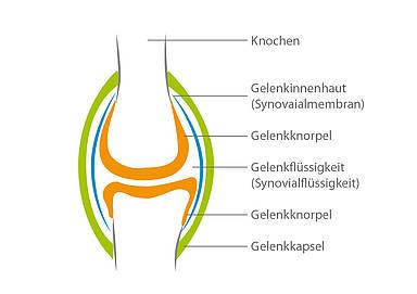 Medicross-Zentrum Orthopädie Sportorthopädie Unfallchirurgie Chirurgie Neckarsulm Knie Gelenk Arthrose